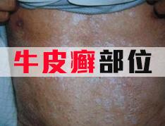 银屑病对外貌的影响
